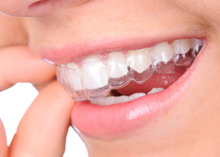 Invisalign Aligner FAQ - Questions and answers about the invisible braces