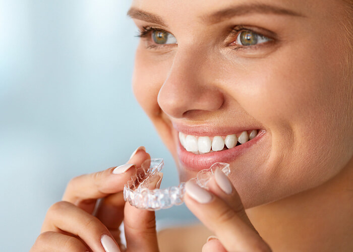 Invisalign - what is it ? The invisible clasp - a clear thing