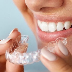 Invisalign - what is it ?